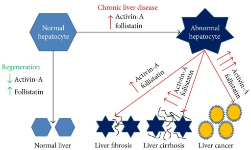 The production of activin-A and follistatin by normal and abnormal hepatocyte. Activin-A and follistatin regulate hepatocyte regeneration in healthy liver. Pathological increase of both activin-A and follistatin by the hepatocyte is associated with several liver diseases including fibrosis, cirrhosis, and hepatocellular carcinoma.