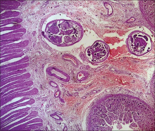 Case 1 nterobius vermicularis (female worm) in the wall of jejunum. Three rounded structures are present beneath the mucosa in the center of the picture with T shaped reproductive system clearly visible (H and E, ×10)