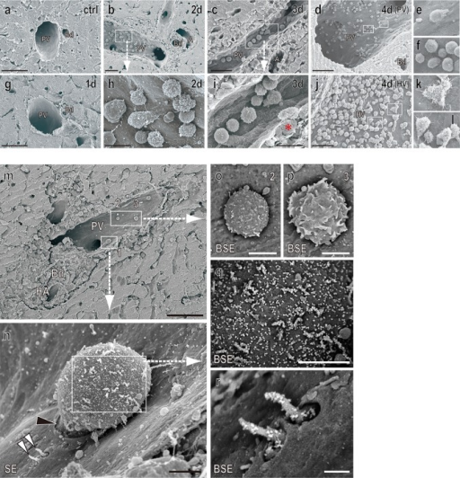 SEM images of the portal tract of the allograft. Representative SEM images of the PV (a–i) and hepatic vein (j–l) after LTx. Note the appearance of adherent cells from day 2 (b, h) in Fig. 1. Note poorly polarized cells, with a less protrusional shape of adherent cells at the PV (e, f) compared to those of hepatic vein (k, l). Immuno-SEM analysis for CD8β (m–r). Note CD8β+ cells undergoing transmigration at the PV (m and n, black arrowhead). A backscatter electron (BSE) image of 1–3 (o–r). Note considerable amount of CD8β signal was evenly and densely distributed in the cell body (q) as well as the lamellipodia-like structure (r, white arrowheads) of 1, but not 2 and 3 (o and p). Bd bile duct, PV portal vein, HA hepatic artery, HV hepatic vein. Scale bars: a, c, d, j, and m 50 μm; b, g 30 μm; h, i 10 μm; n–p 2.5 μm; q 2 μm; r 0.5 μm
