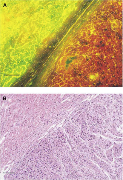 (A) Fluorescence micrograph of the liver including HCC at 3 h after 500 mg kg−1 ALA administration. The right part of the specimen was illuminated reddish-orange by excitation of blue light. (B) The specimen stained with HE. Histopathological examination revealed the right part to be HCC and the left part to be non-HCC. Scale: a bar represents 0.1 mm.