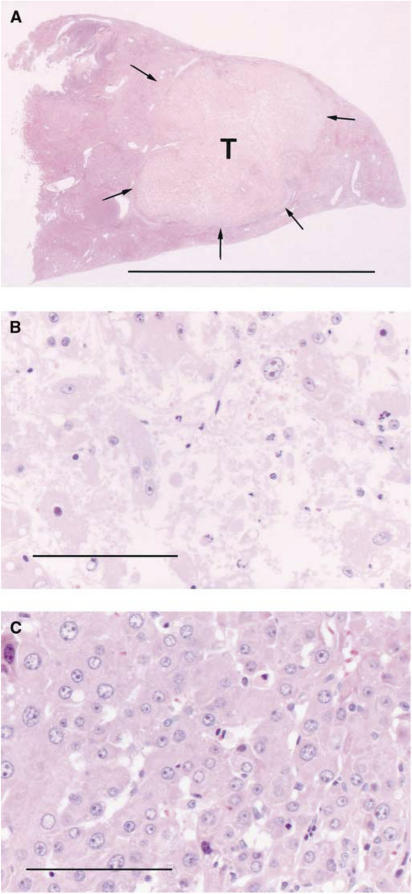 Histological sections of the liver including HCC treated with 30 J per tumour 3 h after 500 mg kg−1 ALA administration. (A) Necrosis was evident in HCC (T), and the necrotic area was 9 mm in diameter and 8 mm in depth. Laser irradiation was performed from the topside. The arrows indicate the necrotic area. (B) Almost all the HCC is occupied with necrotic tissue. (C) On the contrary, necrosis was not evident in the nontumoral tissue (FAH) surrounding HCC. Scale: (A) HE, a bar represents 10 mm. (B,C) HE, a bar represents 0.1 mm.