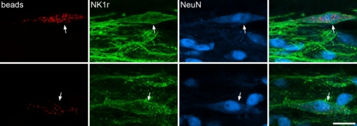 Retrograde labeling of lamina I neurons with fluorescent latex microspheres in parasagittal sections. The top row of images shows an example of a labeled lamina I neuron from C6 in experiment FLM3, and the bottom row shows a labeled neuron in L5 from experiment FLM2. In each case, separate images show the fluorescent latex microspheres (beads, red), NK1r (green) and NeuN (blue), with a merged image on the right. Note the presence of numerous beads in each neuron and that both neurons are NK1r-immunoreactive (arrow). Images are projections of seven (top row) or five (bottom row) confocal optical sections at 1-μm z-spacing. Scale bar = 20 μm in bottom right panel (applies to all).