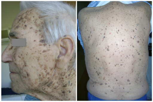 Clinical presentation of innumerable seborrheic keratoses concentrated over the face, neck, back, and chest.