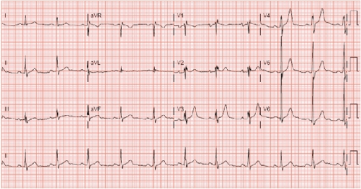ecg showing left atrial abnormality  rsr u2019  and left v