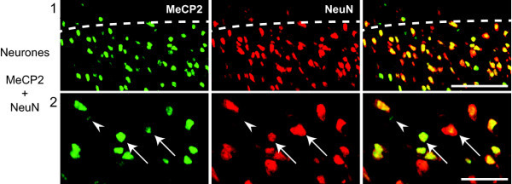 All neurones express MeCP2 in the rat superficial dorsal horn. Confocal images of rat superficial dorsal horn sections. Colocalization of MeCP2 (green; Millipore antibody) and NeuN (red). MeCP2 can be seen within the nucleus of all neurones (arrows). However, some MeCP2 staining is clearly non-neuronal (arrow heads). Pictures show single focal plane. Scale bars, 1) 50 μm and 2) 20 μm.