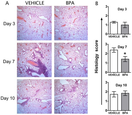 Maternal BPA exposure alters the tissue pathology following influenza A virus infection.Adult offspring of treated dams were infected with influenza virus (HKx31). To examine lung pathology, sub-groups of infected mice were sacrificed 3, 7 or 10 days following infection and lungs were fixed in-situ with 10% neutral buffered saline. Paraffin embedded tissues were cut in 5 µM think sections and stained with H&E. (A) Representative images of tissue sections from infected female mice are depicted. All images are at the same magnification. (B) Tissue sections from all mice in each group were scored based on the degree of inflammatory cell accumulation, as outlined in the Material and Methods section. Data in the graphs represent mean ± SEM (n = 5/group/time point); *p≤0.05.