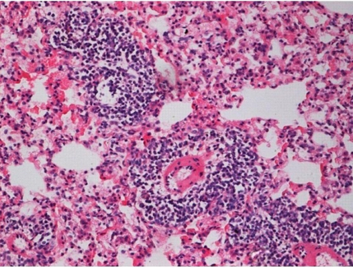 Histological tissue section of the irradiation group (20 Gy) with increased inflammation area (at two months), (H&E staining, ×200).