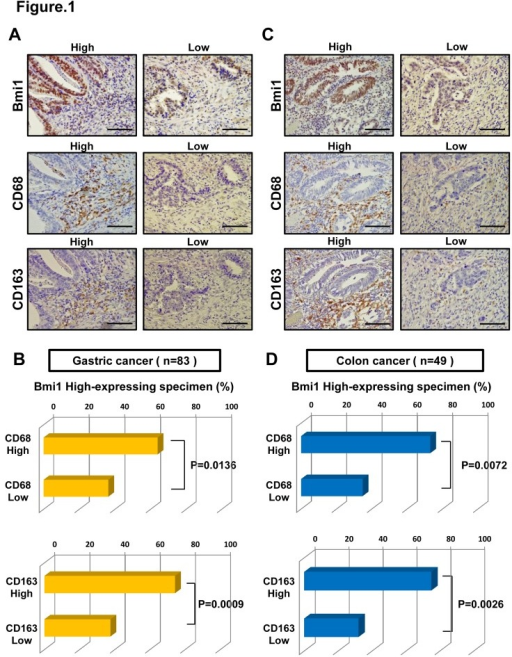 Relationship between the expression of Bmi1 and levels of TAMs.(A) Immunohistochemistry of Bmi1, CD68, and CD163 expression in 83 gastric cancer tissues. Scale bars, 100um. (B) The percentage of CD68/163 positive specimens in high Bmi1 expressing gastric cancer. There was a significant correlation between Bmi1 expression and CD68/163 expression (*P < 0.05, ***P < 0.001, respectively). (C) Immunohistochemistry of Bmi1, CD68, and CD163 expression in 49 colon cancer tissues. Scale bars, 100um. (D) The percentage of CD68/163 positive specimens in high Bmi1 expressing colon cancer. There was a significant correlation between these two groups (**P < 0.01, **P < 0.01, respectively).