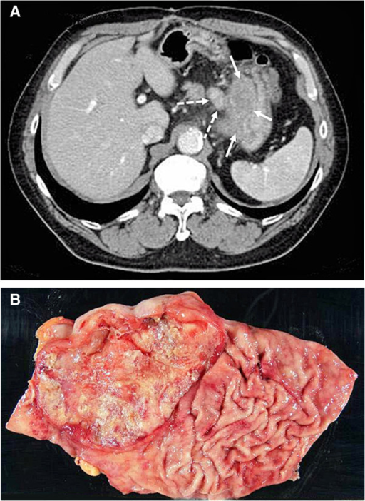 Tumor location and formTumor location and form. Abdominal computed tomography (CT) scans showed carcinoma at the esophagogastric junction (white arrow) and lymph node swelling (dotted arrow) before surgery (A). Macroscopic findings of the resected stomach: a Borrmann type III tumor that measured approximately 100 mm in diameter was located around the esophagogastric junction (B).