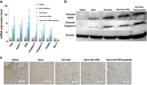 Assessment of apoptosis mediated cell death induction by gemcitabine conjugated gelatin nanoparticles. (a) mRNA expression profile for transcription factors in the apoptotic pathway (n = 6, *p < 0.05; **p < 0.01; ***p < 0.001). (b) Western blot analysis for cleaved PARP, cleaved caspase 3 and β-actin protein expression in treated tumors. (c) TUNEL stained images of treated tumors indicating DNA fragmentation (brown stain). All images were acquired at 20× with scale bar of 50 μm.