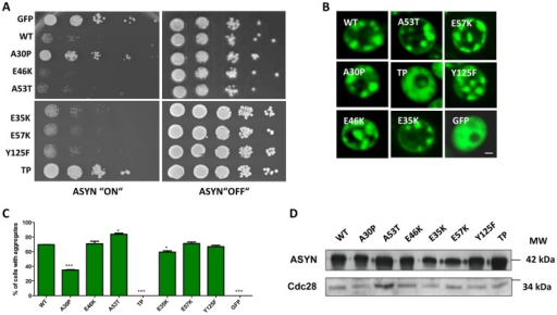 High-copy expression of α-synuclein-GFP variants in yeast.A. Yeast cells expressing GAL1-driven ASYN-GFP variants from 2 µ plasmids were spotted in 10-fold dilutions on selection plates containing 2% glucose (control) or 2% galactose. After incubation for 3 days at 30°C the plates were photographed. Expression of GFP from the same promoter was used as a control. B. Live-cell fluorescence microscopy of yeast cells expressing ASYN-GFP. Yeast cells, pre-grown to mid-log phase, were induced in galactose-containing medium and examined for aggregates at 6 hours of induction. GFP-expressing cells were used as control. Scale bar: 1 µM. C. Aggregate quantification of yeast cells, expressing ASYN-GFP. For each strain, the number of cells displaying cytoplasmic foci is presented as percent of the total number of cells counted. For quantification of aggregation at least 300 cells were counted per strain and per experiment. GFP-expressing cells were used as a control. Student's t test (*p<0.05, **p<0.01, ***p<0.001). D. Protein levels of ASYN-GFP variants. Expression of ASYN-GFP variants was induced for 6 hours in galactose-containing medium. Equal amounts of crude protein extracts were used for Western analysis with anti-ASYN antibody and anti-cdc28 antibody as a loading control. n = 2.
