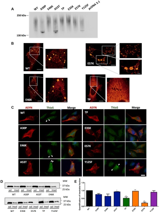 ASYN biochemical state.A. Native Gels. Immunoblot analysis of native PAGE of cells transfected with the BiFC constructs in HEK 293 cells. Smears indicate the presence of oligomeric species of ASYN with different sizes. n = 2. B. STED microscopy. Selected mutants were imaged in order to characterize the fine structure of the inclusions. C. Thioflavin S staining. H4 cells expressing selected SynT mutants were incubated with ThioS in order to reveal beta sheet-rich structures. Some of the inclusions display amyloid-like properties, with increased staining in the inner part of the inclusions, indicated with arrow heads (▸). Scale bar: 10 µm. D-E. Triton X-100 solubility assay and quantification. H4 cells show that all mutants form detergent insoluble species. Student's t test (*p<0.05, **p<0.01, ***p<0.001). n = 2. Quantification of insoluble fraction shows a decrease in TP and E57K mutants.