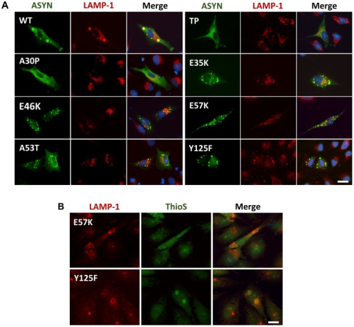 ASYN partially co-localizes with endosomes/lysosomes.A. Immunocytochemistry analysis of H4 cells expressing selected ASYN mutants. Partial co-localization of ASYN and LAMP1 suggests interplay between lysosomal degradation and ASYN inclusion formation. B. E57K and Y125F inclusions co-localize with lysosomal marker LAMP-1. We detected the presence of endosomes/lysosomes surrounding the aggregates in E57K and Y125F. This indicates that, maybe this could be the preferential via for degradation for these mutations. Scale bar: 10 µm.