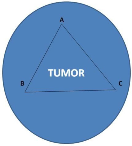 Letters A,B and C indicate the site of drug administration (Cisplatin and lipidilol) while in the center of the tumor the microwave ablation spike was inserted. We used a 17cm spike as this was available to us and only 0.5-1 cm was inserted in the center of the tumor.
