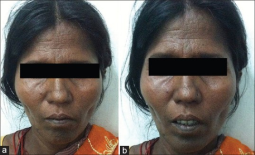 (a and b) Eight months follow-up of the lady who sustained traumatic isolated oculomotor nerve injury on the left side showed complete recovery of ptosis with minor residual squint