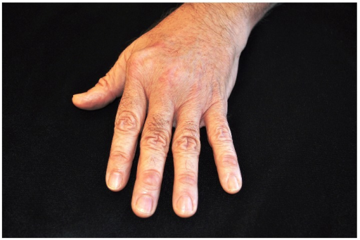 Clinical Photo of left windblown hand demonstrating ulnar drift of the digits at the MCP joint.