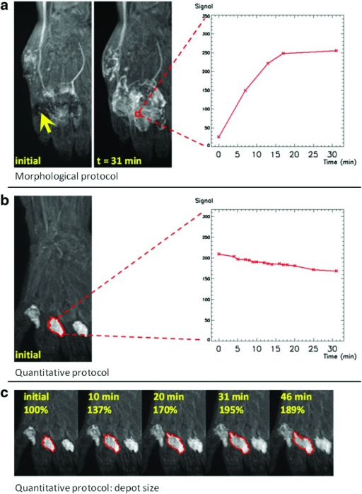 Evolution of the depot (hand) for the two different protocols. Images are coronal maximum intensity projections (MIP) of the original image volumes. (a) Morphological protocol (Patient 1, 49-year-old, female, ipsilateral arm). In the image acquired immediately after the injection, the depot area is affected by signal loss due to short T2* effects (yellow arrow). The graph plots the evolution of the signal with time, in a voxel within the depot area (red) selected on a later MIP. (b) Quantitative protocol (Patient 3, 50-year-old, female, ipsilateral arm). The region of interest (ROI, red) is contoured on the initial MIP and encompasses one of the four inter-digital depots. The graph shows the decrease with time of the mean signal from the ROI. (c) Expansion with time of the projected depot delineated in (b). A color version of this figure is available in the online article at www.liebertpub.com/lrb.