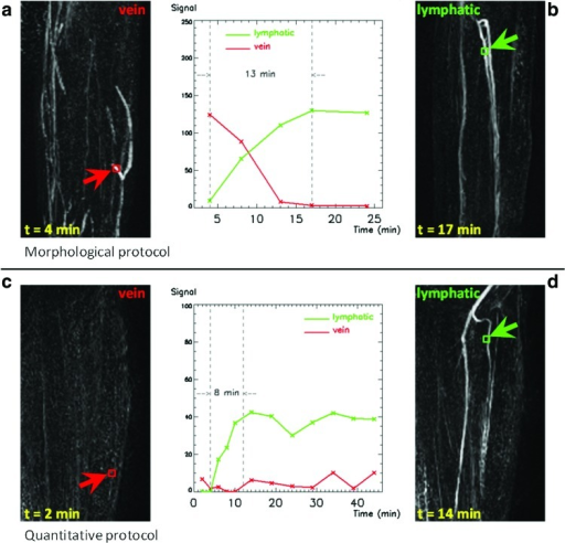 Enhancement of lymphatic vessels and veins in the forearm of Patient 2 (61-year-old, female, ipsilateral arm), for the two different protocols, and associated graphs plotting the evolution of the signal with time, including a measurement of rising time for lymphatic enhancement. Voxels belonging to the same structures are selected for both protocols; green color refers to lymphatic vessels, red to veins. Coronal maximum intensity projections (MIP) are created from image volumes at different time points, after subtracting the first post-contrast volume in order to visualize the evolution of the enhancement from the baseline. Veins are not visible in images acquired with the quantitative protocol. Lymphatic vessels have a later and slower enhancement compared with veins. The same lymphatic vessels can be identified with both protocols. (a, b) Morphological protocol: veins, lymphatic vessels; (c, d) Quantitative protocol: veins, lymphatic vessels. A color version of this figure is available in the online article at www.liebertpub.com/lrb.