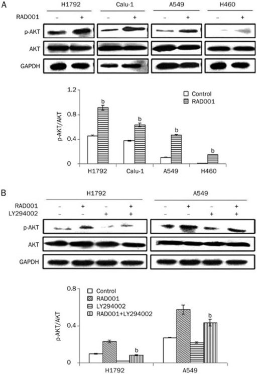 Effect of RAD001 on AKT phosphorylation. (A) H1792, Calu-1, A549, and H460 cells were treated with 10 nmol/L RAD001 for 2 h. p-AKT and AKT were analyzed by Western blot using GAPDH as a loading control. Relative changes in p-AKT protein expression were tested in various groups. Statistical significance was evaluated by comparison with the control group using Student's t test. bP<0.05 vs control. (B) H1792 and A549 cells were treated with the control, RAD001 (10 nmol/L) alone, LY294002 (10 μmol/L) alone and LY294002 (10 μmol/L) in combination with RAD001 (10 nmol/L) for 2 h. p-AKT and AKT were analyzed by Western blot. GAPDH was served as the loading control. Statistical significance was evaluated using one-way analysis of variance. bP<0.05 vs RAD001 alone.