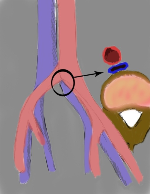 drawing showing left common iliac vein compression by right common iliac artery (morphologic type I).