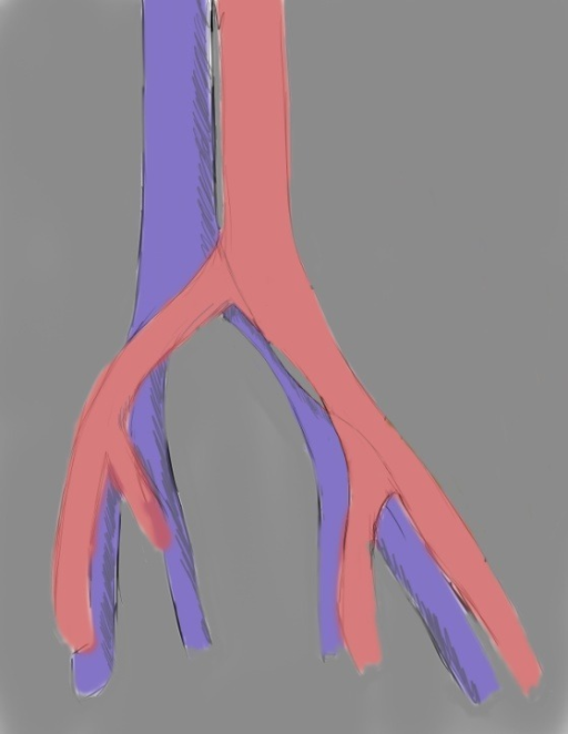 drawing showing diffuse atrophy of left common iliac vein in May-Thurner Syndrome (morphologic type II).