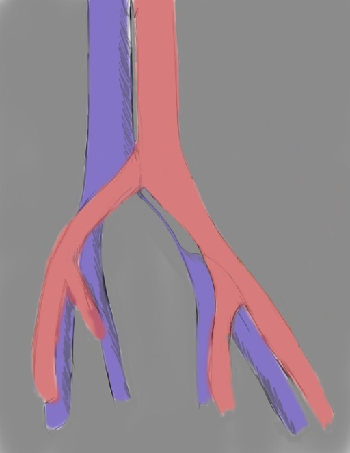drawing showing cordlike obliteration of left common iliac vein in May-Thurner Syndrome (morphologic type III)