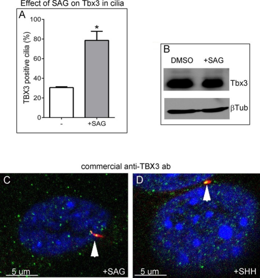Tbx3 immunoreactivity in cilia increases in response to Hedgehog pathway stimulation without an overall increase in Tbx3 protein levels.(A) Quantitation of Tbx3+ cilia in wild type MEFS -/+ SAG shows marked increase in Tbx3 immunoreactive cilia in response to SAG. B) Western blot assaying Tbx3 and btubulin (loading control) protein levels in MEFs +/- SAG; the increase in number of Tbx3+ cilia occurs without an increase in amount of total Tbx3 protein. (C, D) Immunofluorescence images of SAG-treated (C) or SHH (D) MEFs assayed with a Santa Cruz commercial anti-Tbx3 antibody (A20) raised against an internal Tbx3 epitope (green) confirm colocalization with cilia/Arl13b (red). These merged images include DAPI in blue; white arrowheads highlight ciliary Tbx3. Please see Figure 6—source data 5,6 for z-stacks.DOI:http://dx.doi.org/10.7554/eLife.07897.032
