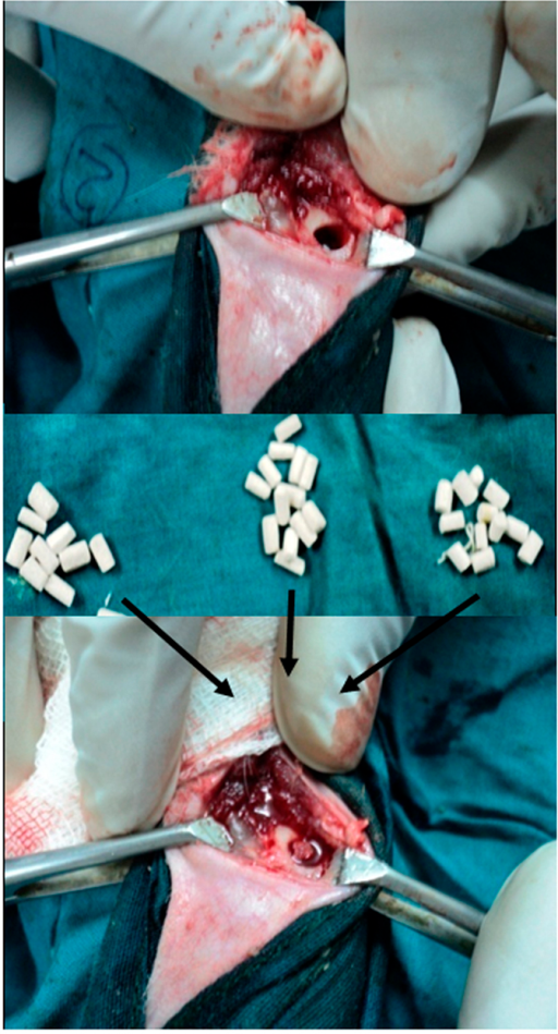 Surgical placement of the porous scaffolds (with or without doped BAG).