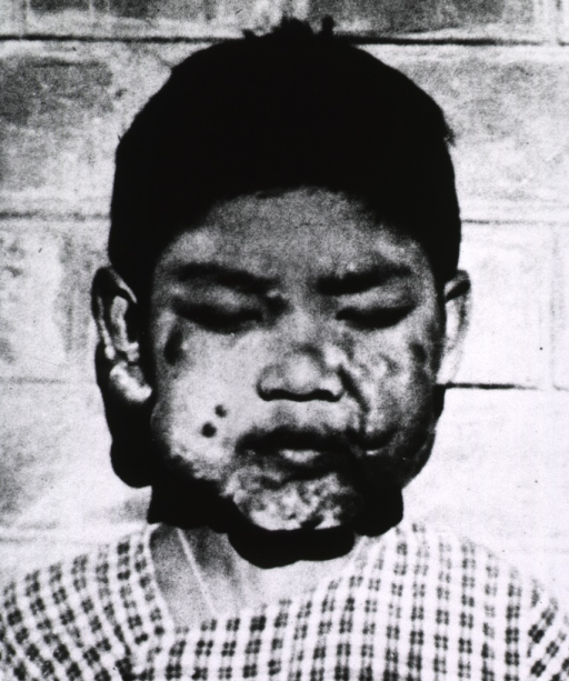 <p>A young girl with facial deformities resulting from leprosy; after sulfone treatments over a period of three to five years, she was &quot;free of symptoms and without deformity.&quot;</p>