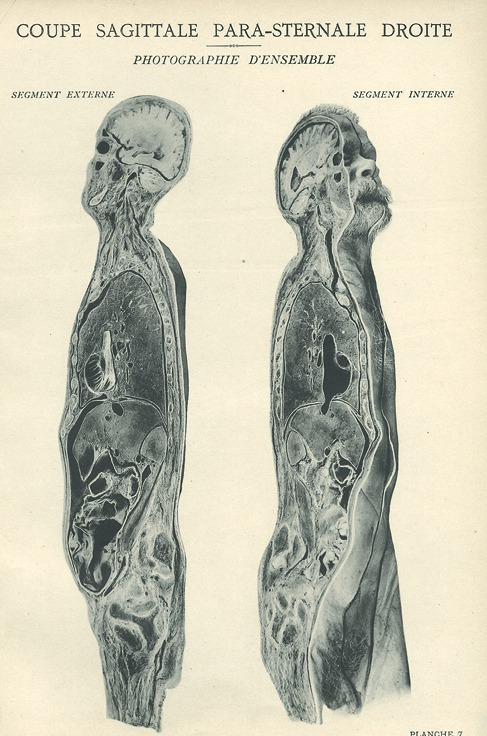 <p>Image of sagittal plane view of right side of man's body showing internal and external segments of the sternum. Issued in seven installments by the flamboyant Parisian surgeon Eugene-Louis Doyen (1859-1916), this atlas of 279 &quot;heliotyped&quot; photographic plates of cross-sectioned bodies was a radical departure from past practice. Atlas d'anatomie topographique, Planche [7].</p>