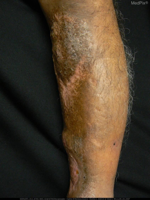 A patient with Low grade myxofibrosarcoma.
