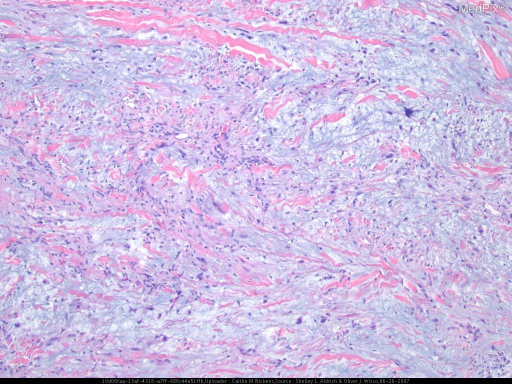 A punch biopsy specimen from nodules on the left proximal medial leg and left distal posterior leg demonstrated spindled cells with hyperchromatic irregular nuclei and variable pleomorphism.  They were isolated to the dermis and subcutaneous tissue, with a multinodular growth pattern and a prominent myxoid stroma.  Scattered multinucleated cells were also present as were perivascular condensation of the tumor cells without vascular invasion.  Perineural invasion was also present.