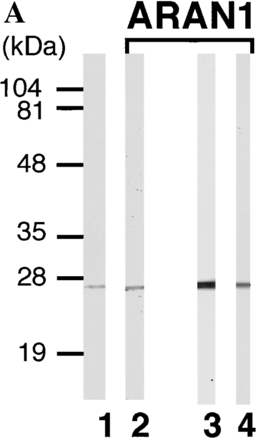 Anti-Ran monoclonal antibody,  ARAN1, mono-specifically recognizes Ran  molecule. (A) Cytosolic extract from mouse  Ehrlich ascites tumor cells (lanes 1 and 2),  and total extracts of HEL cells (lane 3) and  BHK21 cells (lane 4) were electrophoresed  on 12.5% polyacrylamide gels, transferred to  nitrocellulose, and then probed with anti-Ran  polyclonal antibodies (lane 1) and ARAN1  (lanes 2, 3, and 4). (B) BHK21 cells were double stained with ARAN1 and rabbit anti-Ran  polyclonal antibodies. ARAN1 and rabbit  anti-Ran polyclonal antibodies were detected with goat Cy3-conjugated anti–mouse IgG and goat FITC-conjugated anti–rabbit IgG, respectively. Phase–contrast microscopy is also shown.