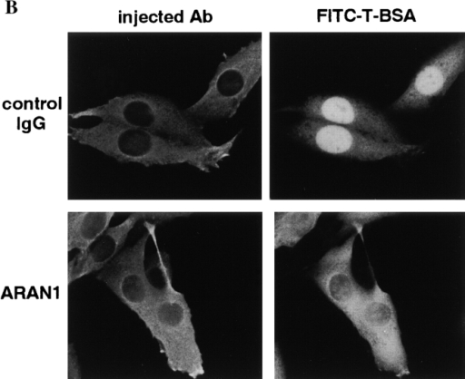 ARAN1 induces the intracellular localization rearrangement of Ran and inhibits the basic type NLS-dependent nuclear  protein import. (A) ARAN1 (bottom) or control mouse IgG (top,  both 50 mg/ml) was injected into the cytoplasm of the cultured  BHK21 cells and incubated at 37°C for 30 min. The cells were fixed  and probed with rabbit anti-Ran antibodies at 4°C overnight, and  then stained with Cy3-conjugated goat anti–rabbit antibodies. Injected ARAN1 and control mouse IgG was detected with FITC-conjugated goat anti–mouse IgG antibodies. Phase–contrast microscopy is shown in the right panels. (B) ARAN1 or control  mouse IgG (50 mg/ml) was injected into the cytoplasm of cultured  BHK21. After a 30-min incubation at 37°C, FITC-labeled T-BSA  was injected into the cytoplasm of the same cells. After incubation  at 37°C for 20 min, the cells were fixed and observed by fluorescent  microscopy. Injected IgG was detected with Cy3-labeled anti-mouse IgG.