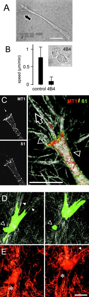 Proteolytic migration of HT-1080/MT1 fibrosarcoma cells in 3D collagen lattice. (A) Morphology of HT-1080/MT1 cell migrating through 3D collagen lattice monitored by video microscopy. (B) Reduction of migration speed (black bars) and induction of detached, nonmobile spherical morphology (inset) by adhesion-perturbing anti–β1 integrin antibody 4B4. (C) Confocal backscatter (matrix fibers) and fluorescence of MT1-MMP (red), β1 integrins (green), and colocalization (yellow; arrowheads) at fiber traction zone of the leading edge. (D) 3D reconstruction of a calcein-stained migrating cell by time-lapse confocal microscopy and (E) backscatter signal of the same cell from the central section (time, 60 min). Fiber bundling (white arrowheads), deposition of cell fragments (black arrowhead), and newly formed matrix defect (asterisk). Black arrows, direction of migration. Bars, 20 μm.