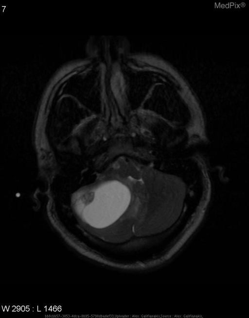 Fluid signal mass in the right cerebellar hemisphere with mural nodule.