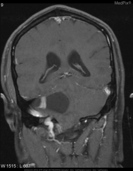 Fluid signal mass in the right cerebellar hemisphere with enhancing mural nodule.