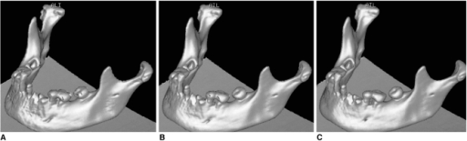 Image quality of the mandible according to the degree of overlap between reconstructed slices. Image quality improved as overlap increased.A. 2.50 mm, 3.0, 0%B. 2.50 mm, 3.0, 25%C. 2.50 mm, 3.0, 50%