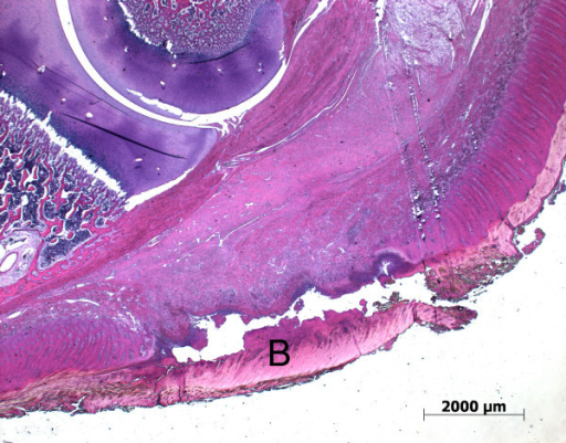 Histological section of a piglet's heel (toe to the left) with inflammation of the heel and a flap of loose horn tissue (B).