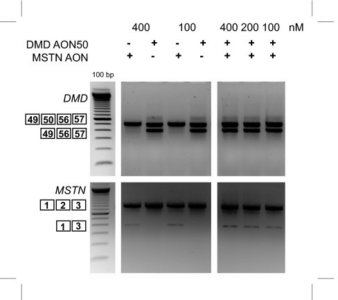 Dual exon skipping of myostatin and dystrophin in DL589.2 DMD patient cells. DL589.2 myotubes were transfected with 200 nM of myostatin AON and h50AON1 DMD AON. RNA was isolated two days post-transfection and analyzed for myostatin and dystrophin skips by RT-PCR.