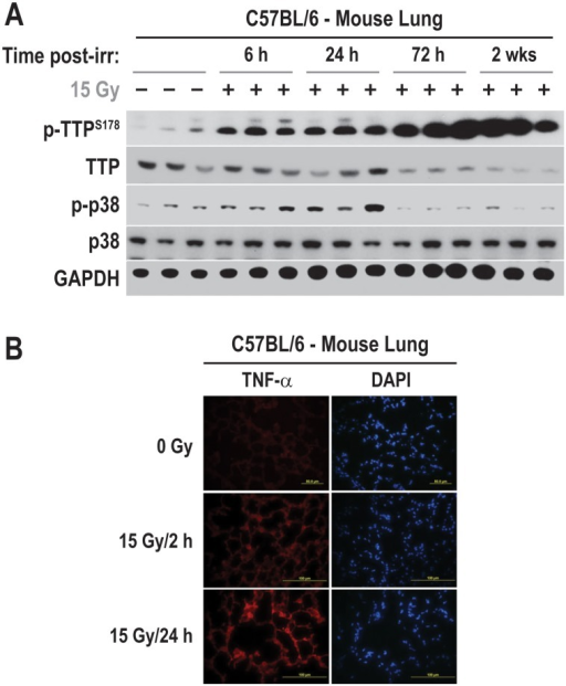 Radiation causes significant down-regulation of TTP in irradiated mouse lung.(A) C57BL/6 mice were either sham-irradiated or the whole lung was irradiated with a single dose of 15 Gy. Tissue lysates were prepared from three individual animals at each indicated time points post-radiation and immunoblotted using indicated antibodies. (B) Mouse lung cryo-sections from sham-radiated or 15 Gy single fraction radiated mice were isolated at indicated time points and immune-staining were performed as described in materials and methods.