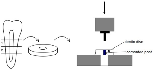 A setup of the custom-made jig for measuring the push-out force (modified from Le Bell et al 2005 [24]). 1= coronal layer, 2= apical layer.