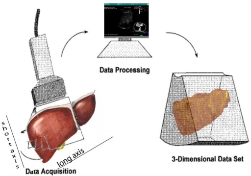 Draft of 3-D reconstruction: LEFT: Bidimensional continuous scanning of the liver evaluating its short axis through its long axis; the planes captured along the liver are rendered in a 3-dimensional reconstruction using software within the Navigator System.