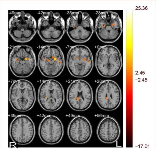 Image of brain functional connectivity in low-back and leg pain patients with lumbar disc herniation following body acupuncture. Bilateral amygdala served as a seed point. R: Right; L: left.