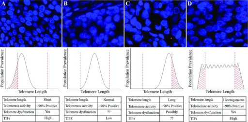 Model depicting the possible relationships between telomere lengths, telomerase activity and telomere dysfunction in human carcinomas. Telomere length analysis by FISH from representative examples of tumours displaying (A) extremely diminished telomere signals in cancer cells, (B) comparable telomere intensities in cancer cells and benign stromal cells, (C) extremely bright telomere signals in cancer cells compared to benign stromal cells and (D) heterogeneous cancer cell telomere lengths varying from extremely short to relatively long. For the images (original magnification ×400), the DNA is stained with DAPI (blue) and telomeric DNA is stained with a Cy3-labeled telomere-specific peptide nucleic acid probe (red). Below each panel is a proposed model depicting the telomere length distributions in each tumour and the relationship to telomere dysfunction. The critical threshold levels for telomere function for critically short and abnormally long telomeres are shown (dashed red lines). Although ∼90% of tumours display telomerase activity, the cancer cell telomere lengths may vary drastically. Thus, ongoing investigations into the cause of telomere dysfunction may unravel new molecular markers with potential translational utility.