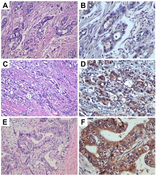 Expression levels of TRPM7 in pancreatic adenocarcinoma.Images in A,C,E (original magnification ×200) represent the H&E sections of the same tumor as the TRPM7 immunohisto-chemical staining in B,D,F (original magnification ×400), respectively. Expression levels of TRPM7: (B) none-to-low; (D) moderate; (F) high.