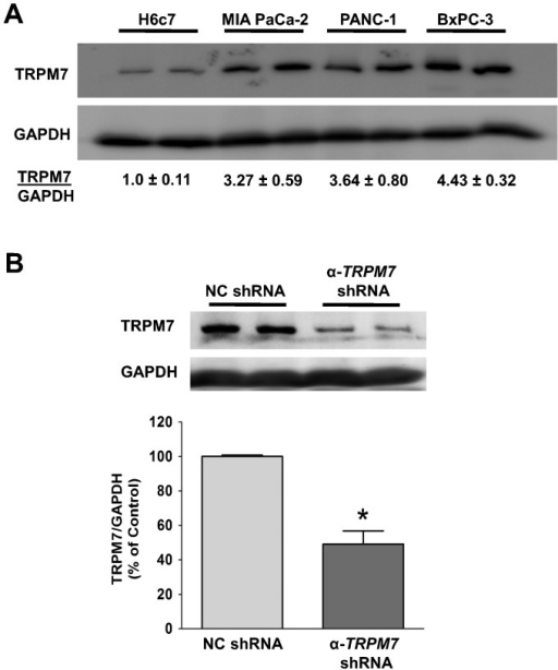 TRPM7 is over-expressed in pancreatic adenocarcinoma cells, and its expression can be down-regulated by shRNA.(A) Cell lysates of each cell line were analyzed for the protein levels of TRPM7 by immunoblotting. The relative amount of TRPM7 and GAPDH protein in each cancer cell line was compared to that in H6c7 as indicated (mean ± standard error). (B) Immunoblotting analysis of TRPM7 protein in BxPC-3 cells transfected with either non-targeting control (NC) shRNA or anti-TRPM7 shRNA. The relative amount of TRPM7 and GAPDH protein in each group of cells is expressed as % of control (NC shRNA). Each column represents the mean ± standard error of three experiments with duplicate samples in each experiment. * indicates statistically significant difference with P<0.05.