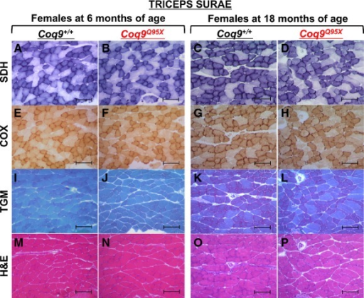 Histopathology of muscle from female Coq9+/+ and Coq9Q95X mice at 6 and 18 months of ageA–H Complex II (SDH) and complex IV (COX) histochemistry of triceps surae showing a decreased stain in 18-month-old Coq9Q95X female mice (D, H) in contrast to normal SDH and COX activity in 6- and 18-month-old Coq9+/+ (A, C, E, G), as well as 6-month-old Coq9Q95X female mice (B, F).I–L Gomori trichrome stain (TGM) of triceps surae showed no differences between 6- and 18-month-old Coq9+/+ and Coq9Q95X female mice.M–P Hematoxylin and eosin (H&E) stains of triceps surae did not reveal any structural abnormality.Data information: Scale bars: 100 μm. n = 3 for each group. Complex IV, cytochrome c oxidase (COX); complex II, succinate dehydrogenase (SDH).