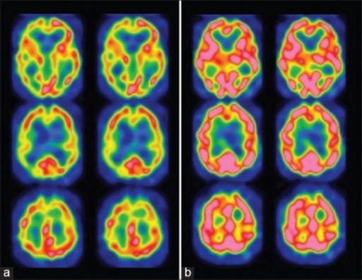 Postoperative single photon emission computed tomography findings of cerebral blood flow before (a) and after intravenous injection of acetazolamide. (b) Note that the reactivity to acetazolamide completely recovered in the left middle cerebral artery territory