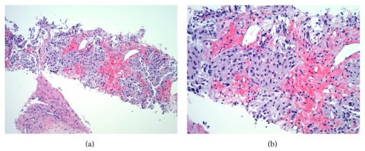 Microscopic examination of renal biopsy specimen in 100x view (a) and 200x view (b) showing cellular epithelioid proliferation arranged in nests and composed of round to ovoid cells with hyperchromatic nuclei, inconspicuous nucleoli, and granular amphophilic cytoplasm.